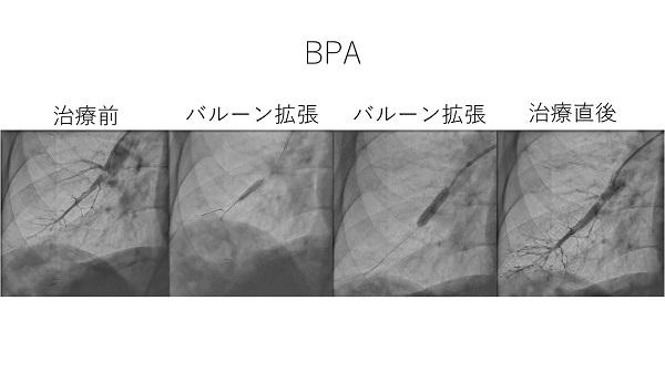 BPA_1.JPG