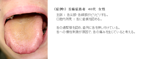 痛み 舌 の