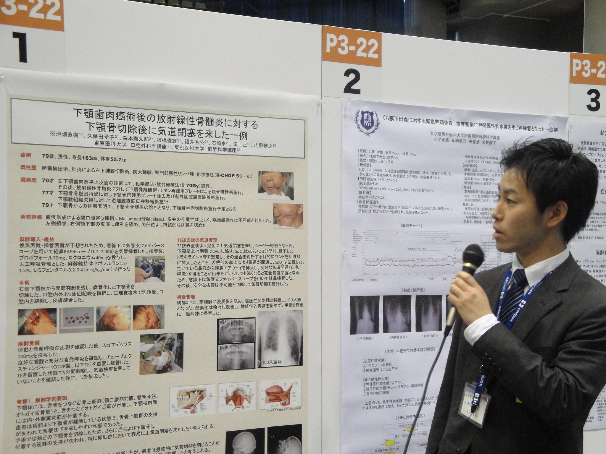 下額骨切除後の気道閉塞についての発表でした。